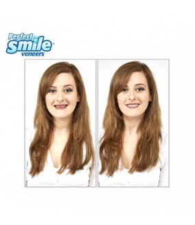Perfect Smile funda para dientes